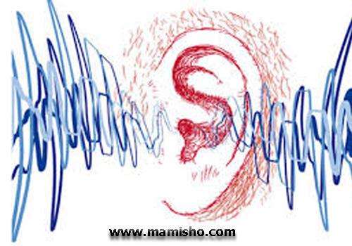 حساسیت به صدا